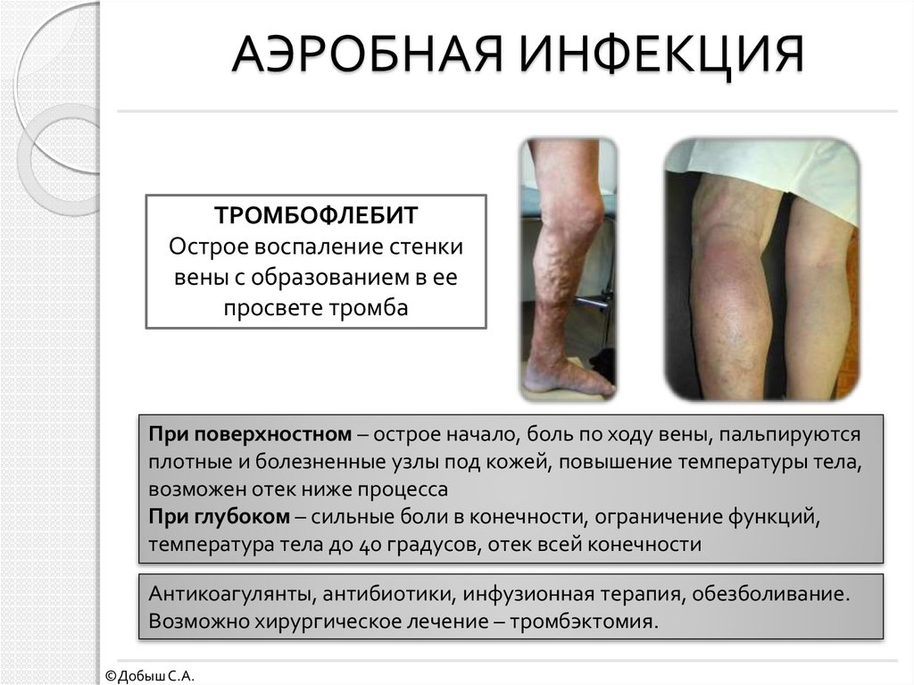 экстренная помощь при воспалении суставов