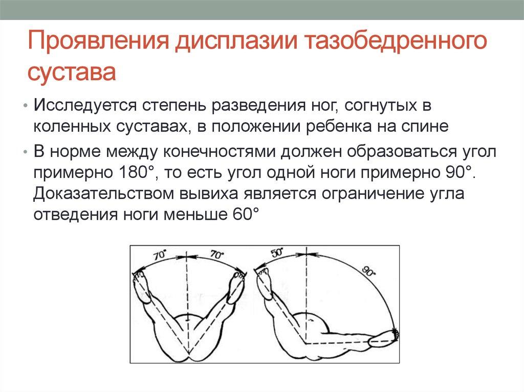 дисплазия тазобедренных суставов средней степени