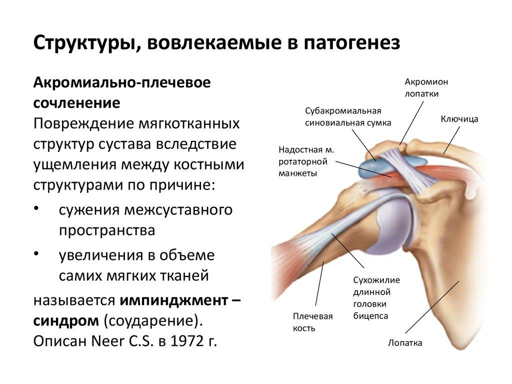 Схема лечения при артрозе плечевого сустава
