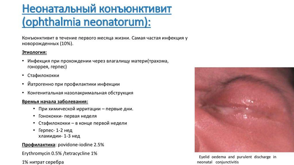 proyavleniya-stafilokokka-vo-vlagalishe