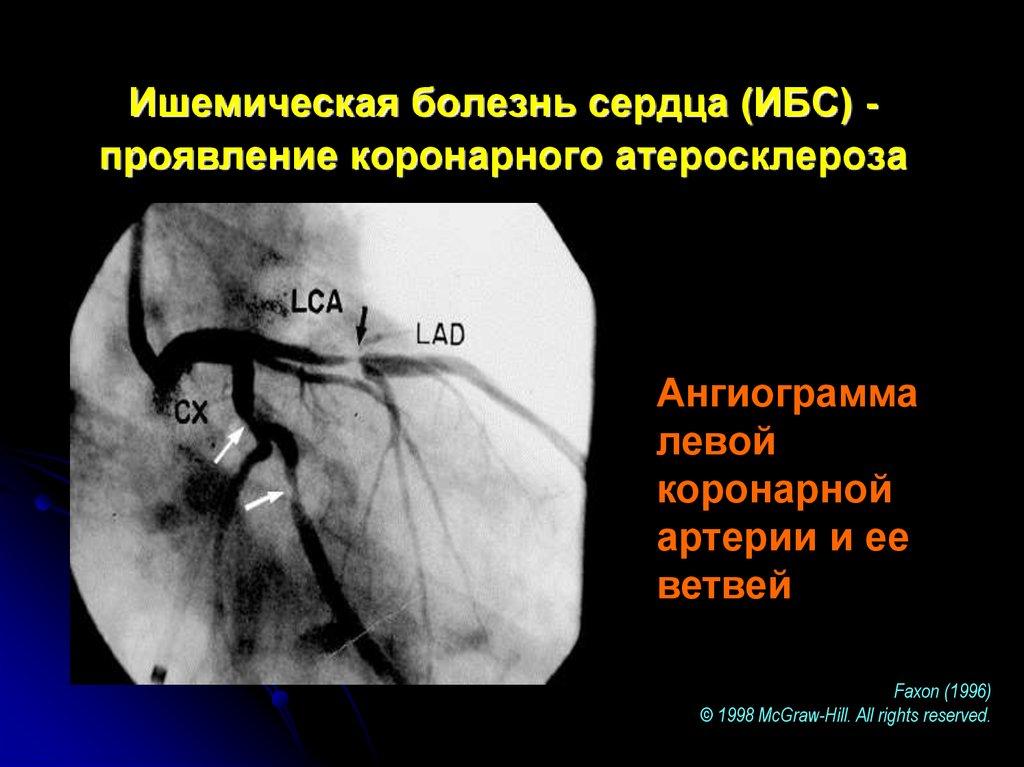 Ишемия и болезни сердца