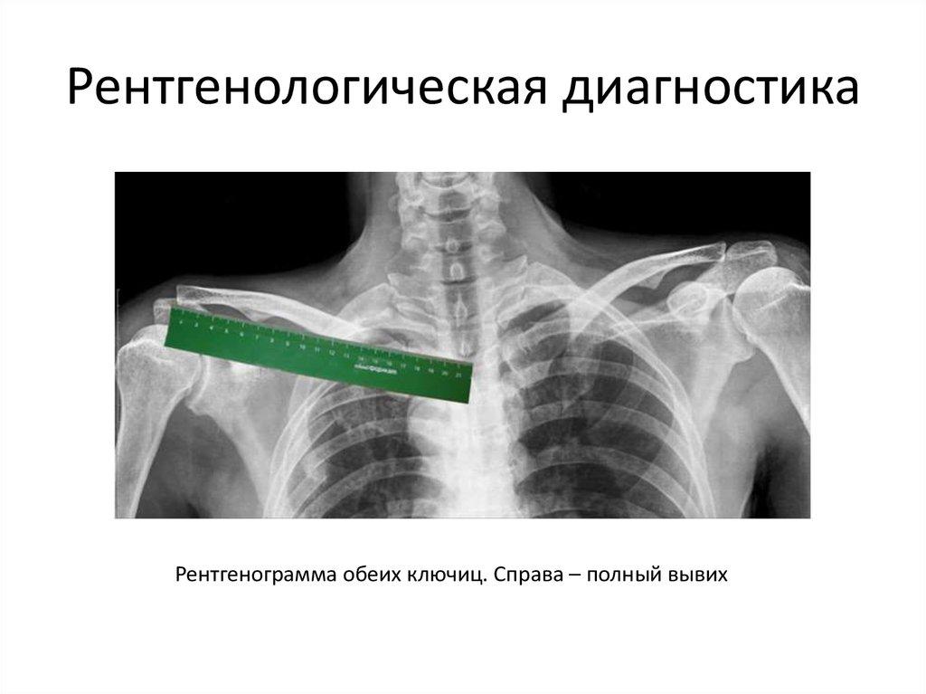 Резаная рана локтевого сустава мкб 10 код