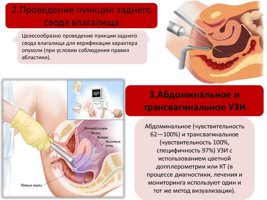 zadniy-svod-vlagalisha-video
