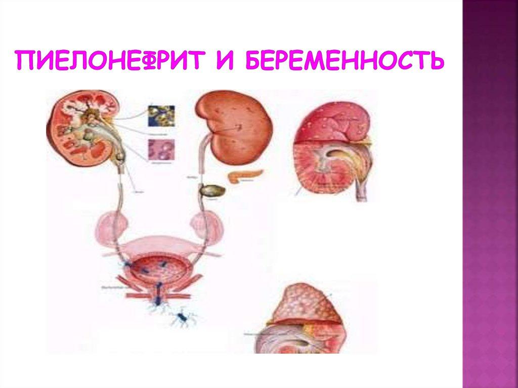 Болезнь почек у беременных 90