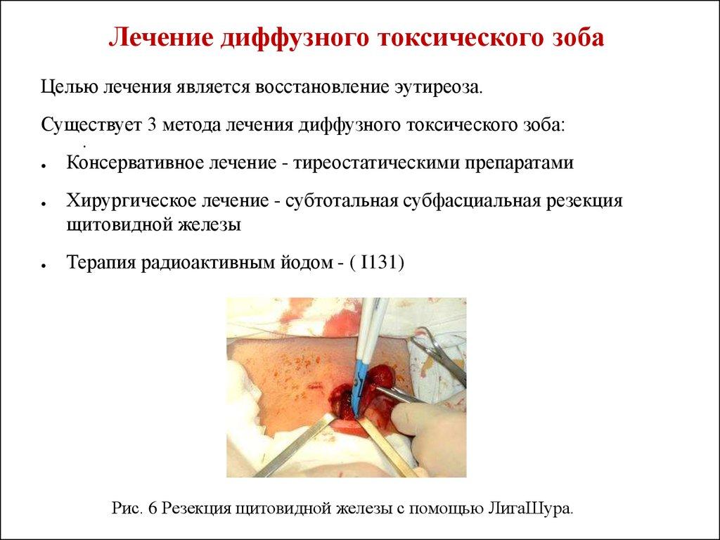 Как лечить диффузно узловой токсический зоб
