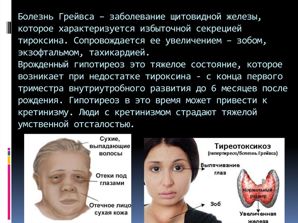 Кожа при болезни щитовидной железы