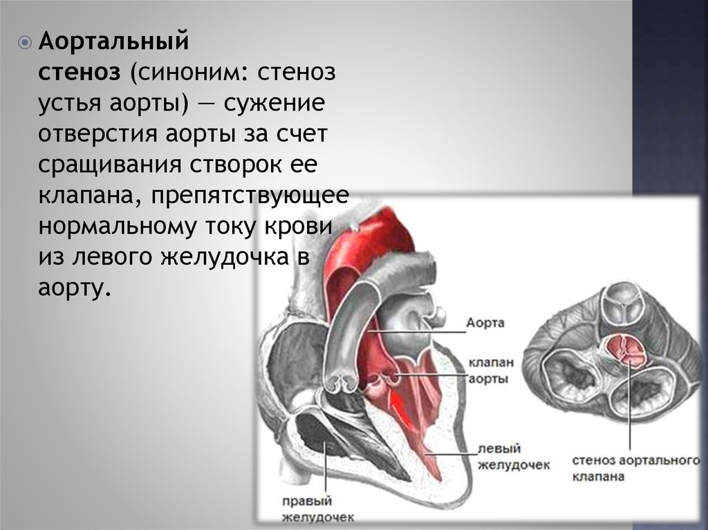 лечение при сужении позвоночного канала