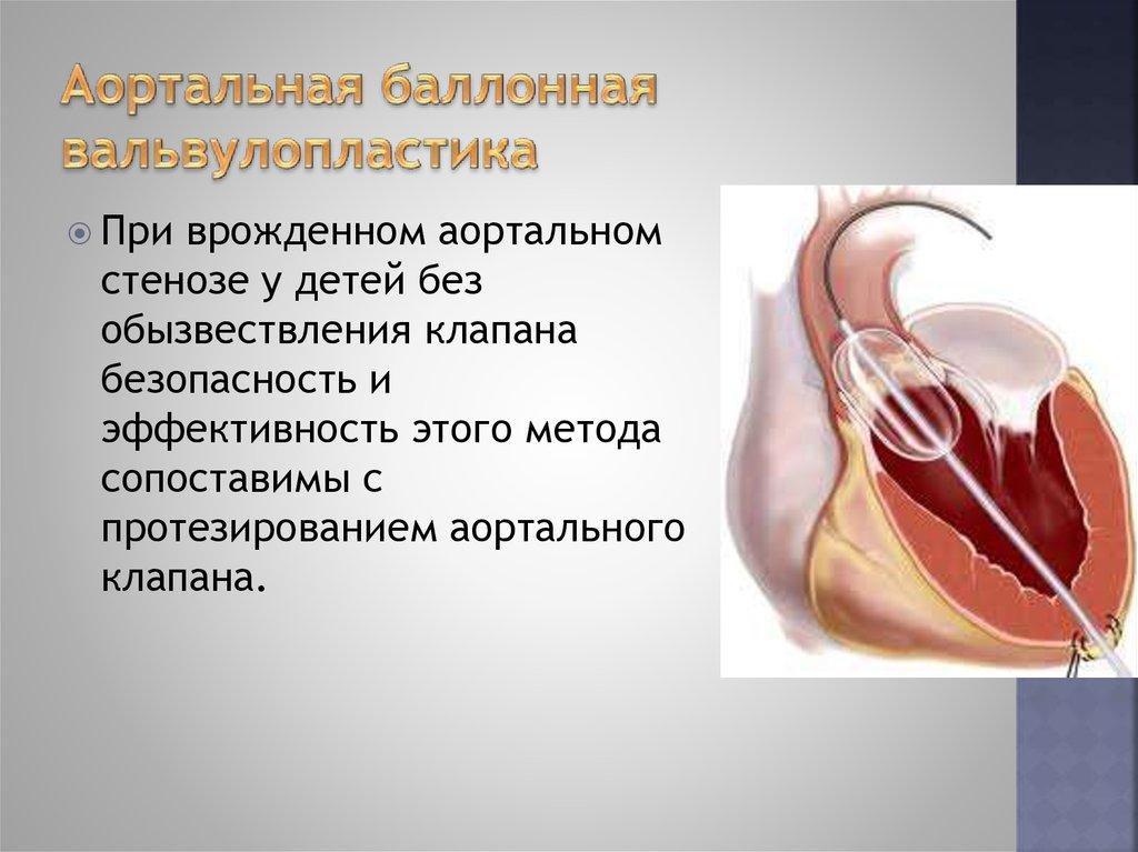 Аортальный стеноз причины симптомы диагностика и лечение