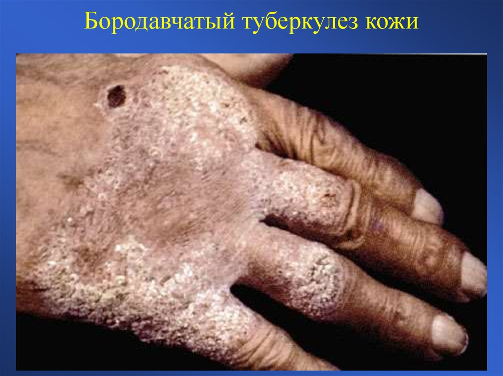 Колликвативного туберкулеза кожи