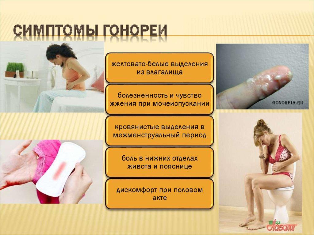 Симптомы гонореи у девушек