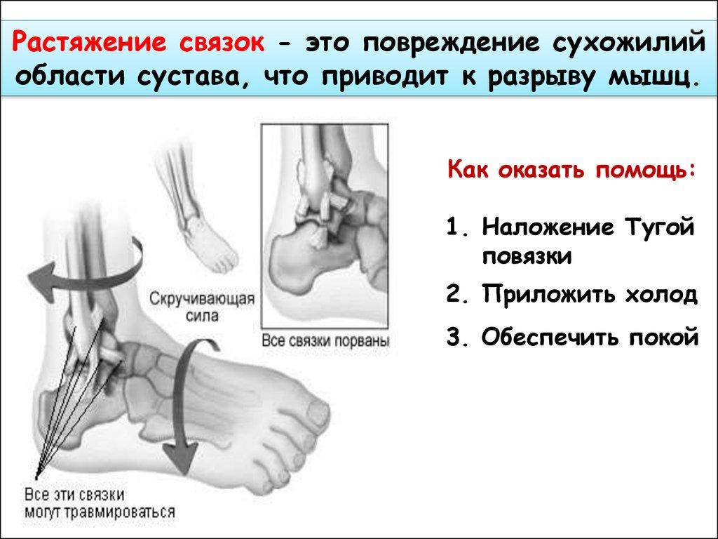 народные средства лечения растяжения связок коленного сустава