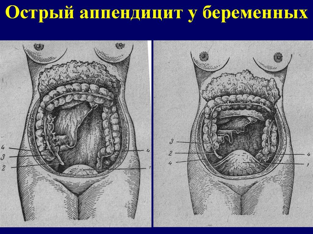 Проявление аппендицита у беременных 43