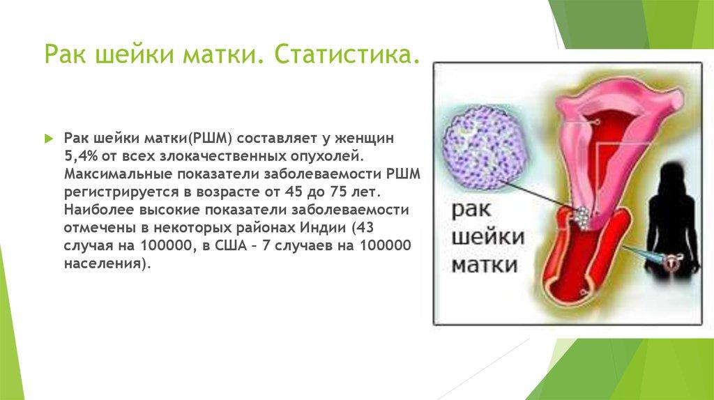 Статистика заболеваемости раком шейки матки