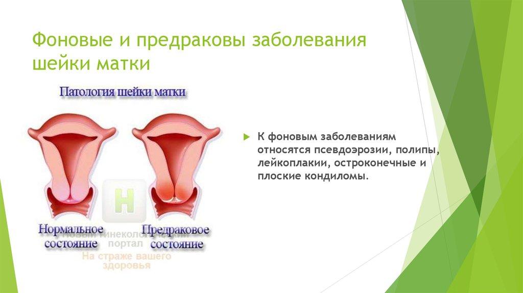Стоимость лечения рака шейки матки