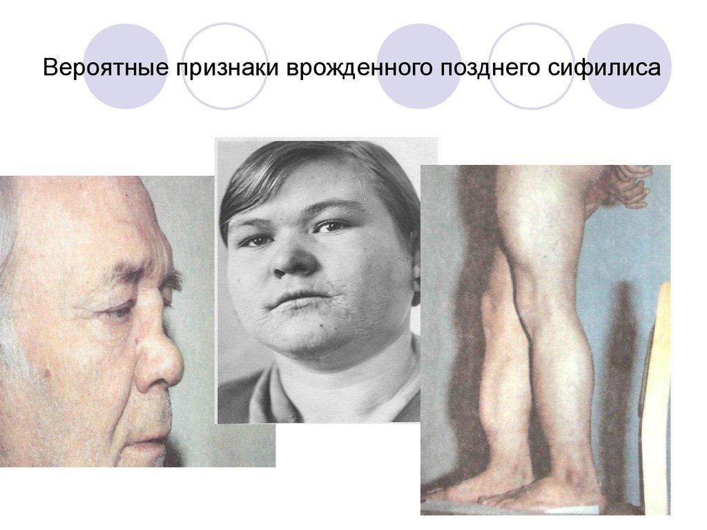 Врожденный сифилис. Сифилис матери - online presentation