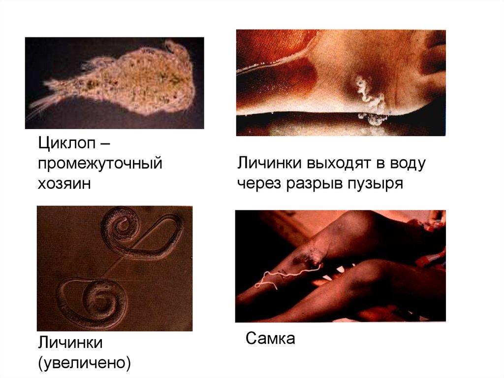 жизненный цикл паразитов человеке