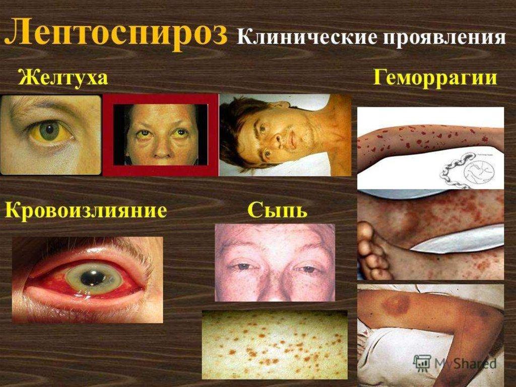 Что может болеть внизу живота у мужчин слева и справа