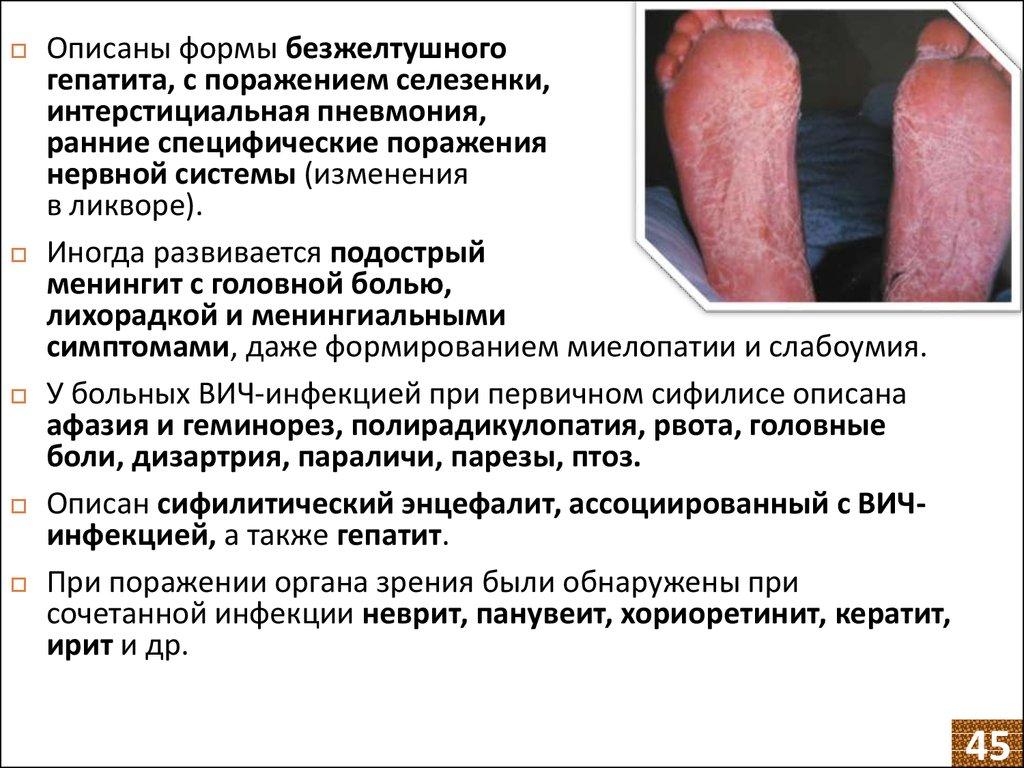 спид вич в украине знакомства