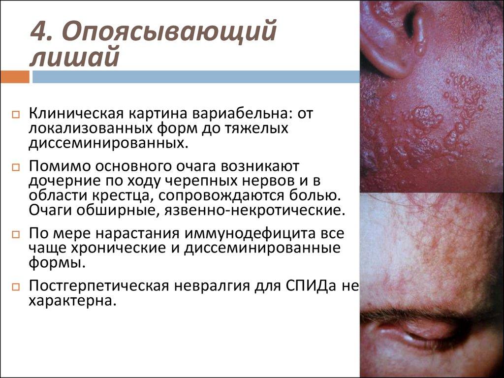 Как лечить болевой синдром при опоясывающем лишае