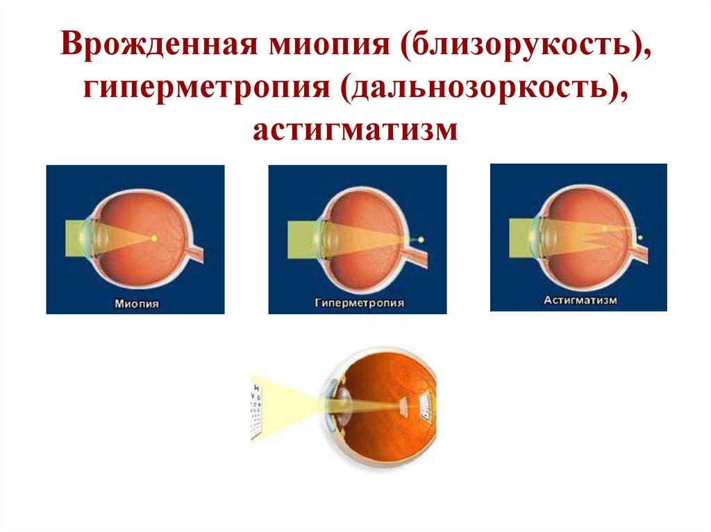 Глазная клиника диагностика зрения москва