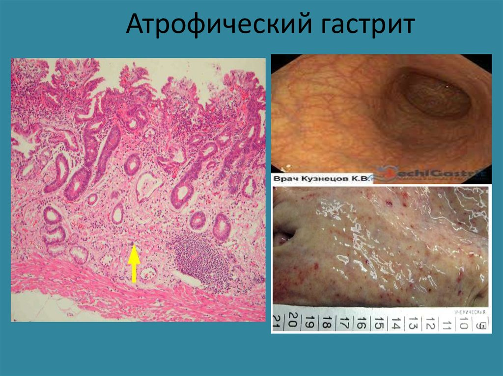 Болезни желудочно-кишечного тракта - презентация онлайн