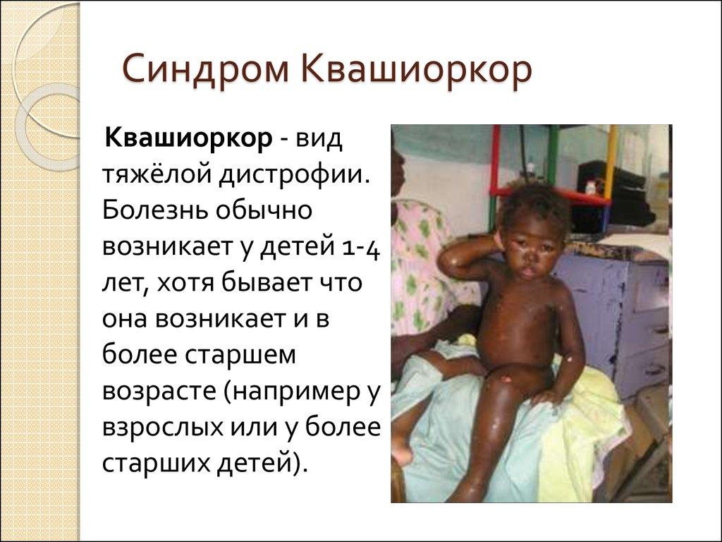 Лекарство при рвоте у детей - какое принимать