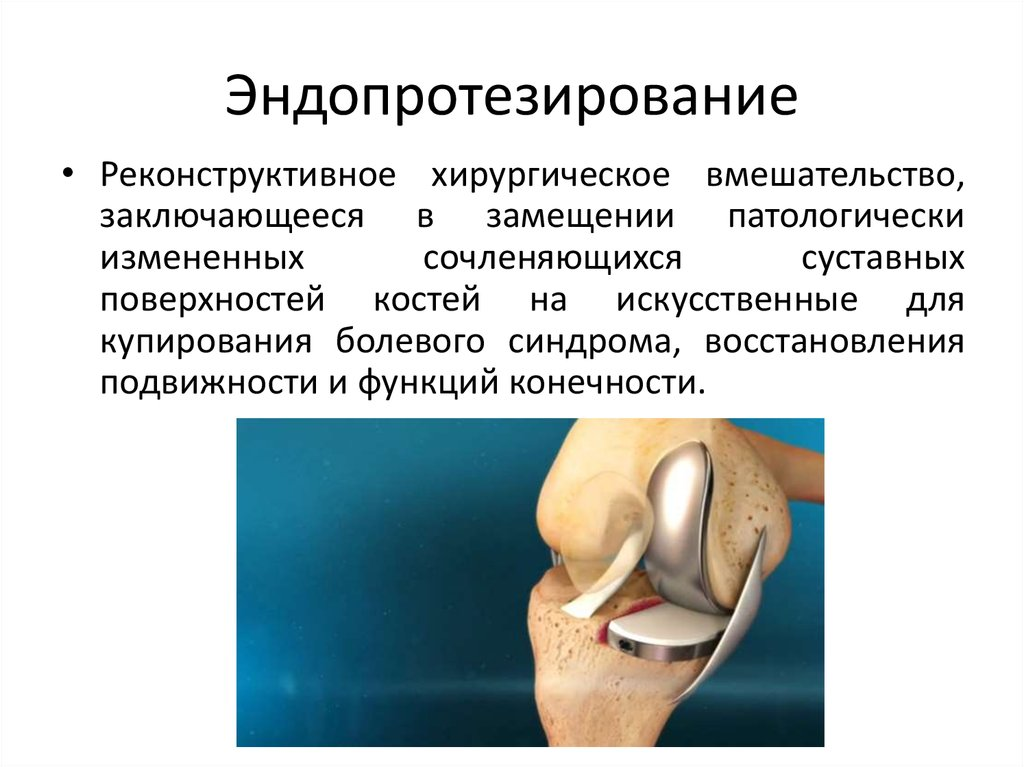 эндопротезирование тазобедренного сустава методика