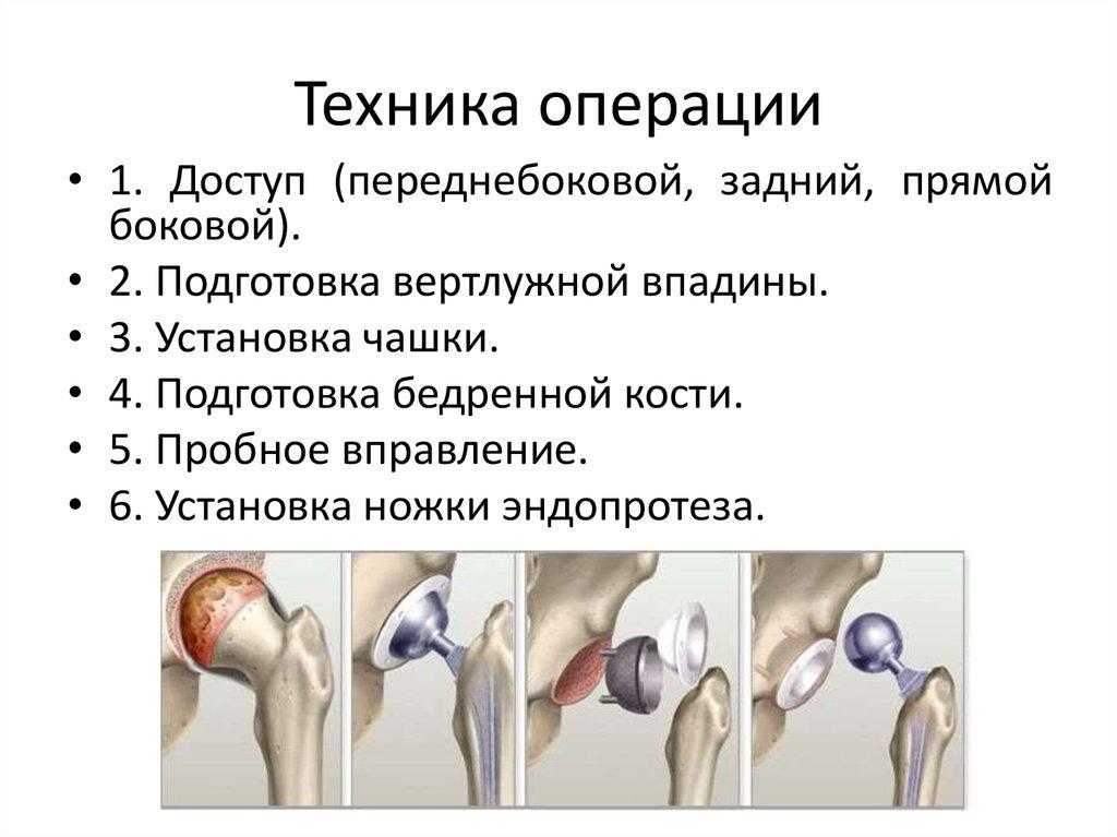 артроз коленных или тазобедренных суставов что это