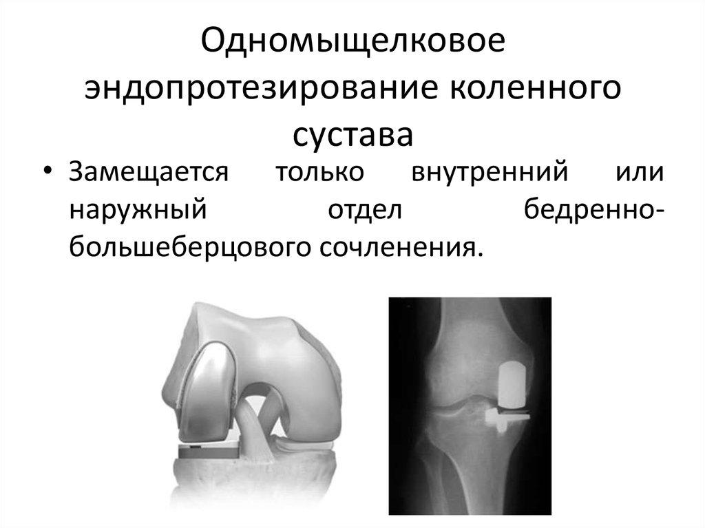 эндопротезирование коленного сустава турникет