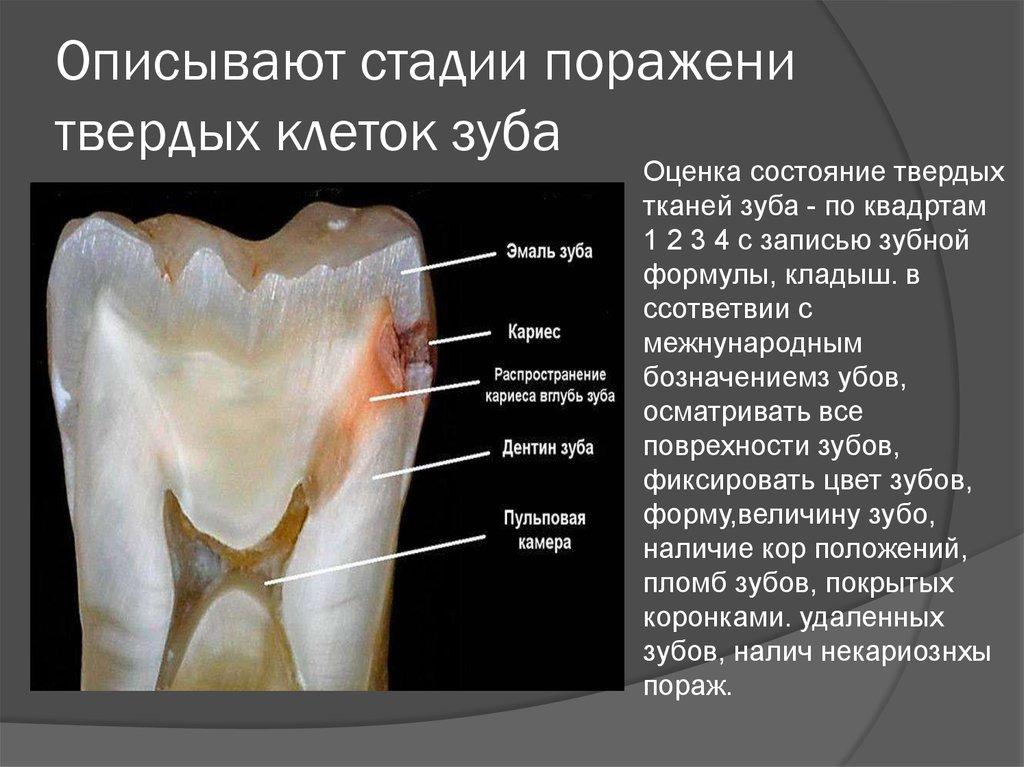 Как устранить чувствительность зуба
