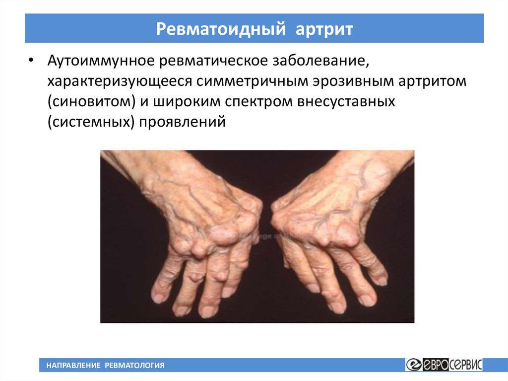 Ревматоидный артрит чем лечить в домашних условиях 863