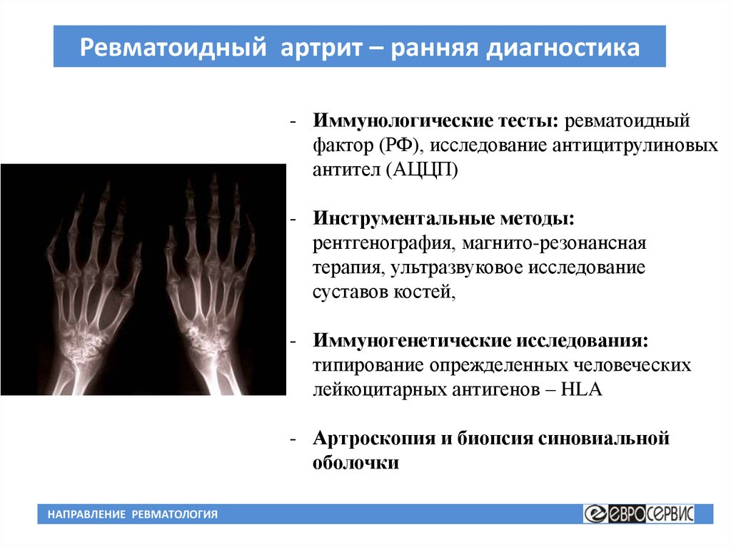 Ревматоидный артрит методы диагностики