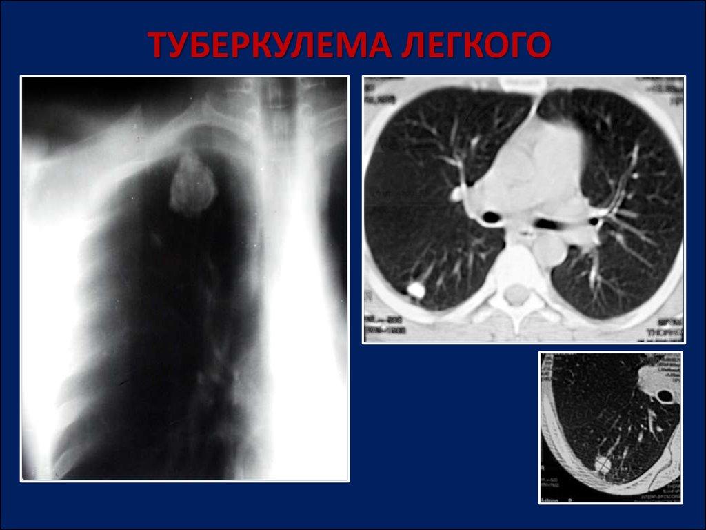 Туберкулема