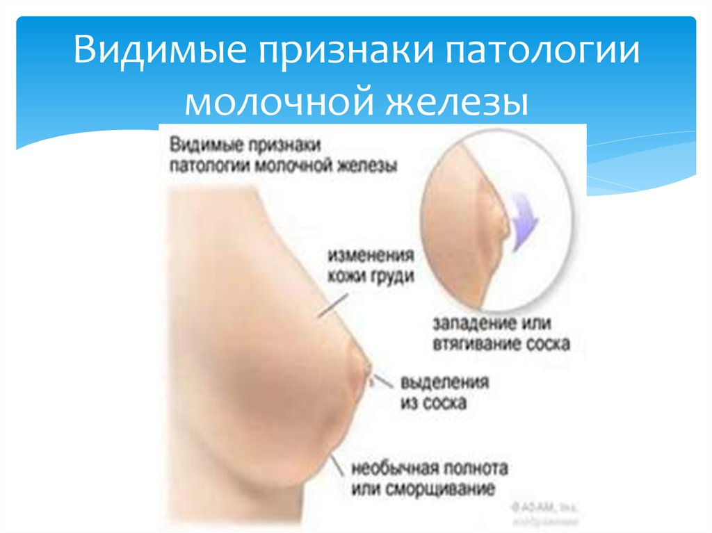 sosok-stal-belim
