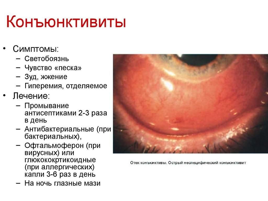 Центр коррекции зрения операция