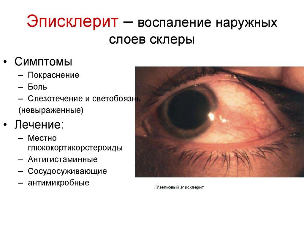 Коррекция зрения в витебску в клинике новое зрение