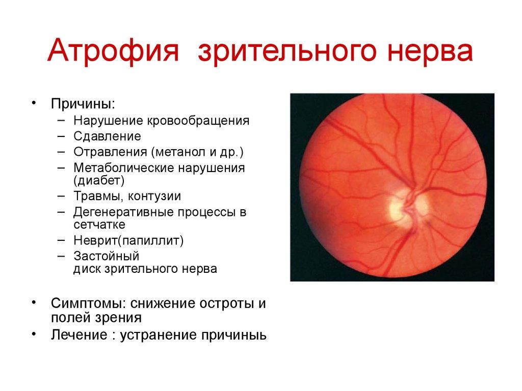 Частичная атрофия зрительных нервов как лечить