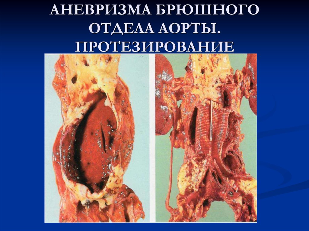 Как лечить аневризму брюшной аорты без операции