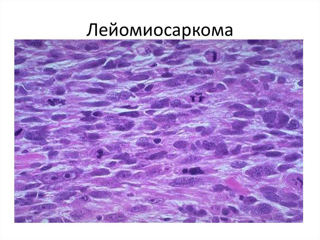 Лейомиосаркома