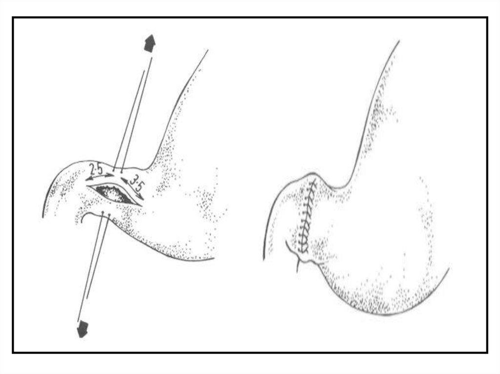 Какое лечение при артрите коленного сустава