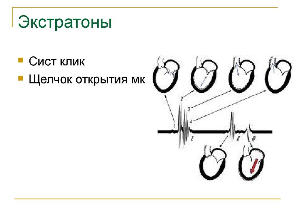 Городская больница 40 гСестрорецк  Инсульту НЕТ