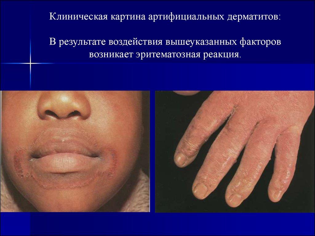 Биофлор для детей при атопическом дерматите