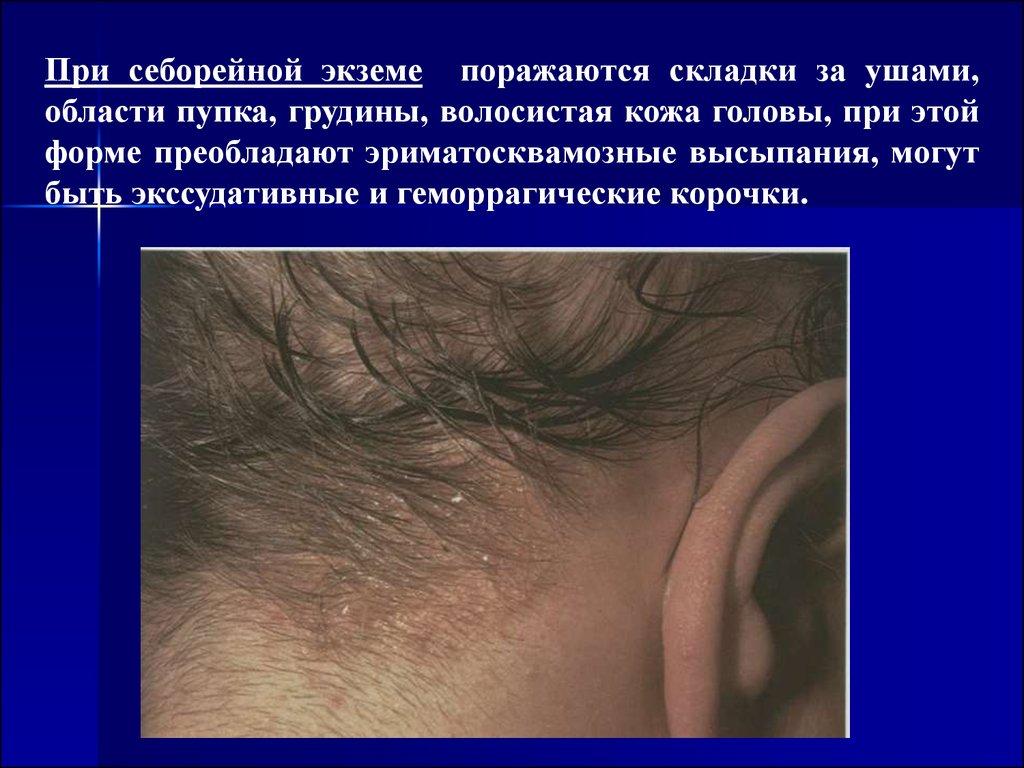 Нейродермит на руках симптомы и лечение