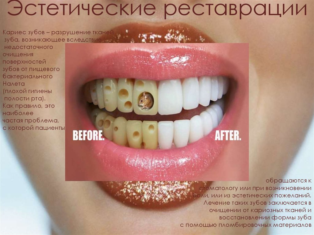 Художественное восстановление зубов