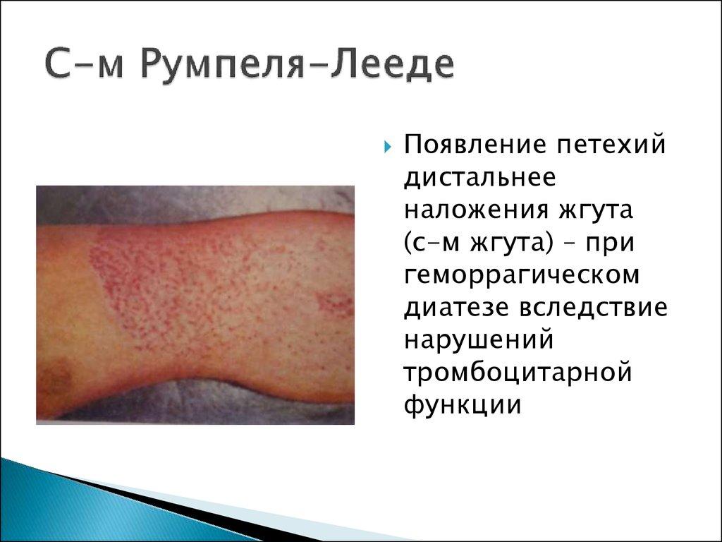 Эритропения