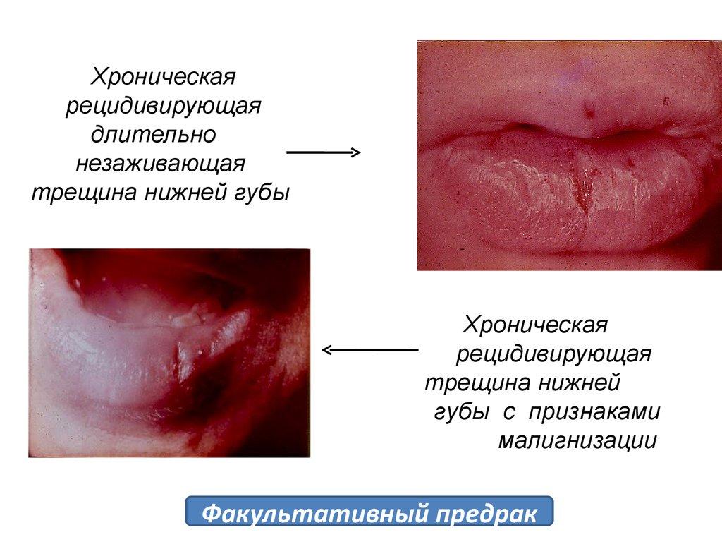 Предрак и рак слизистой оболочки рта и красной каймы губ