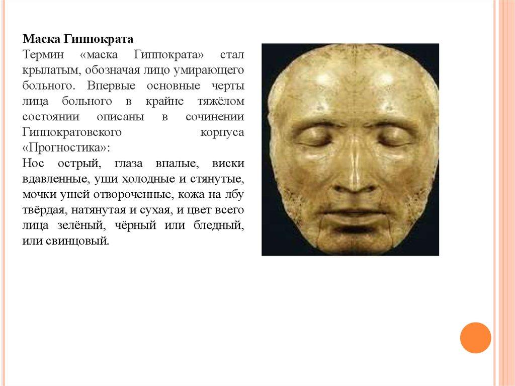 Лицо гиппократа является признаком