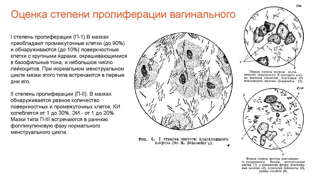 opredelenie-stepeni-chistoti-vlagalisha