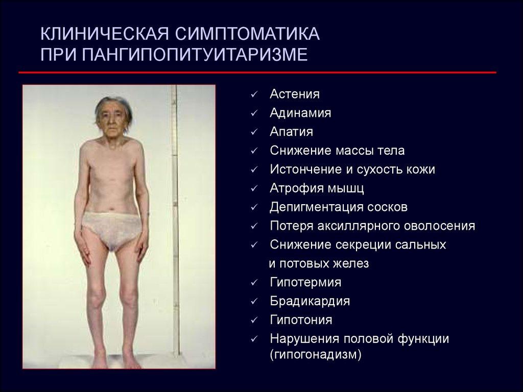 Аритмия лечение народным средством