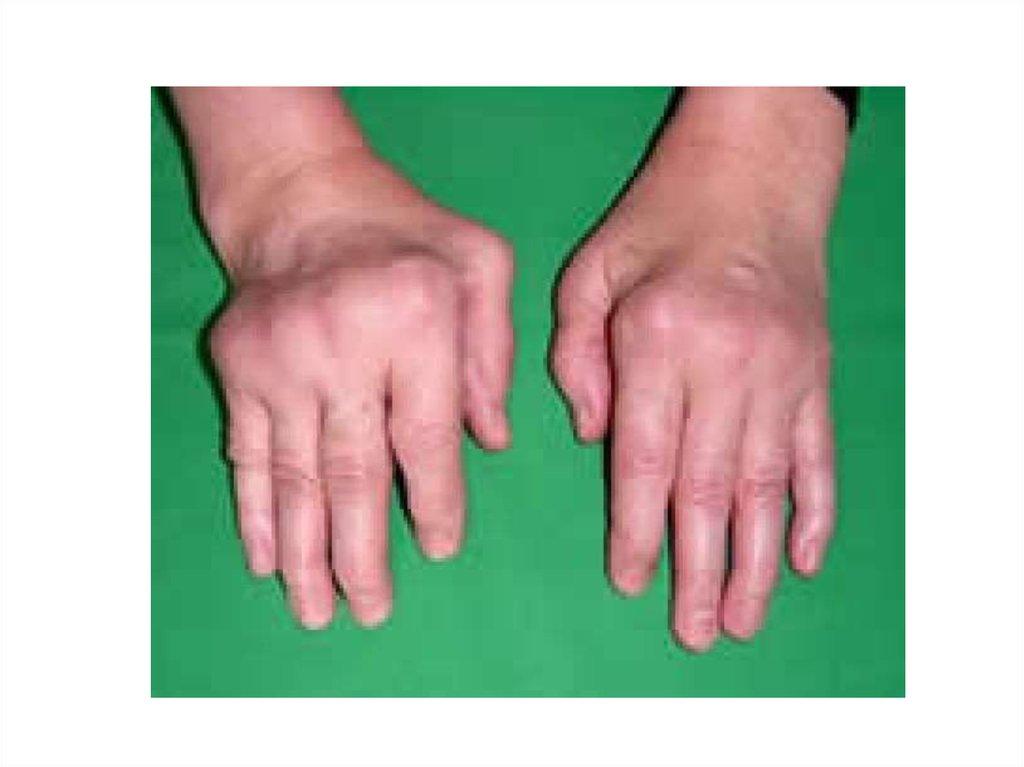 Ревматоидный артрит чем лечить в домашних условиях 139